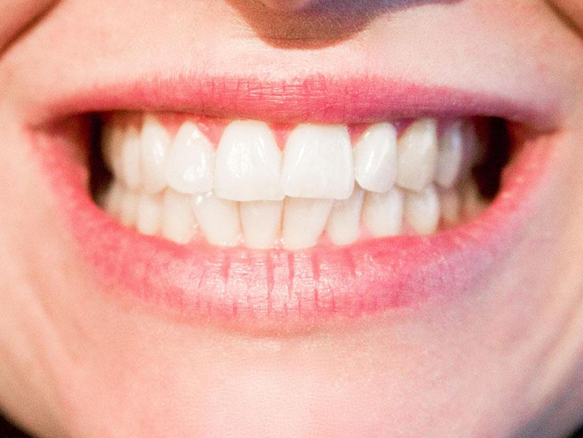 歯茎と歯並び