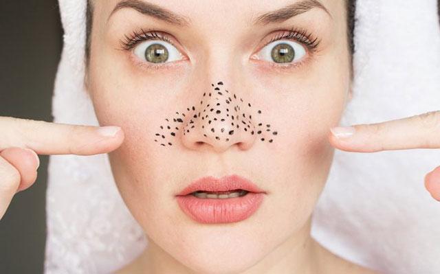 鼻の毛穴の黒ずみに悩む女性